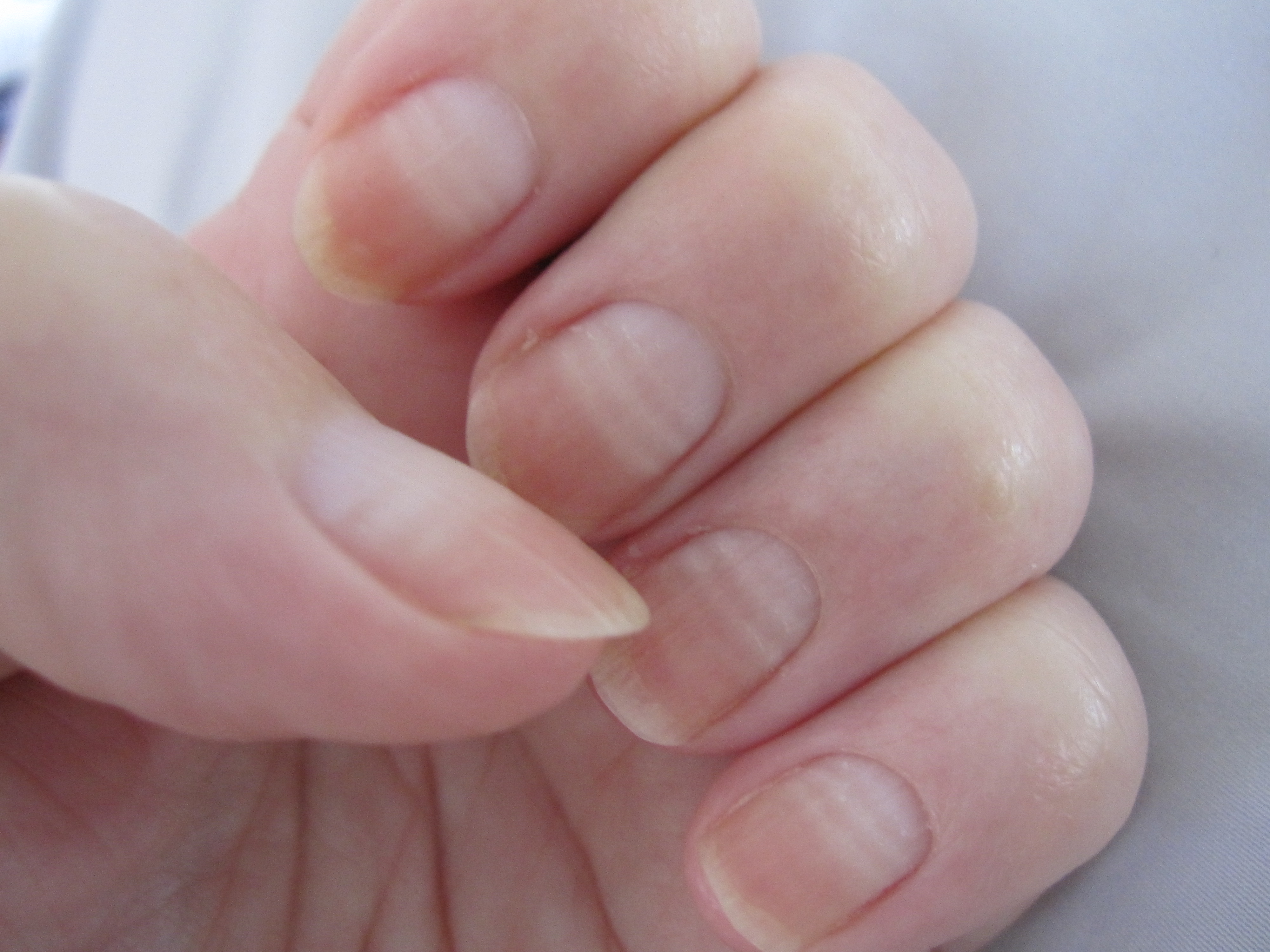 Nail Lifting (Onycholysis) in Adults: Condition ...